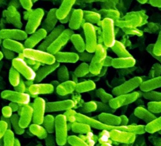 Возбудитель эшерихиоза– Eschirichia coli (кишечная палочка)