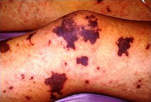 Meningococcemia - сыпь при генерализованной форме менингококковой инфекции