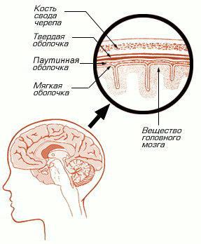 Что такое арахноидит