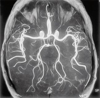 Арахноидит - мрт головы