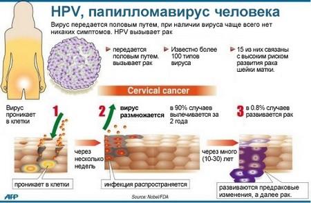 Папилломовирусная инфекция
